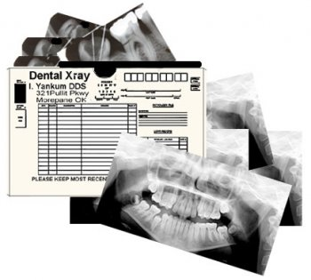 Dental Xray Set